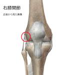 右膝圧痛部